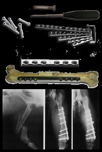 bone-fracture-repair